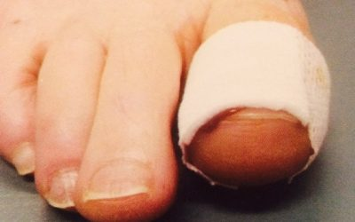 Do I Need Surgery For My Ingrown Nail?