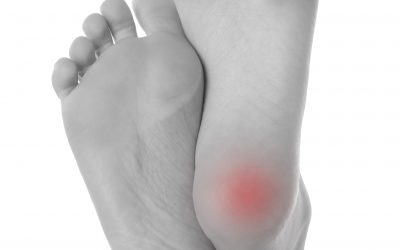 The Morning Pain Phenomena AKA Heel Pain